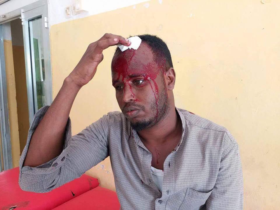 NUSOJ Condemns Brutal Assault of Journalist by Police in Puntland