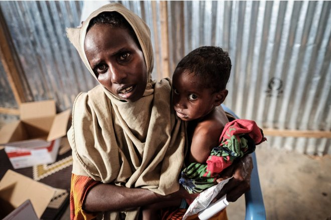 FAO warns against humanitarian disaster in Yemen, 3 African states